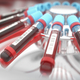 Blood Centrifuge Machine - PhotoDune Item for Sale