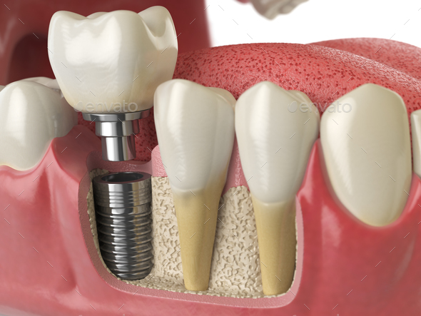 Anatomy of healthy teeth and tooth dental implant in human dentu - Stock Photo - Images