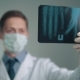 X-ray in the Hands of a Doctor - VideoHive Item for Sale
