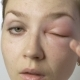 Young Woman with Allergy Touching Eye - VideoHive Item for Sale