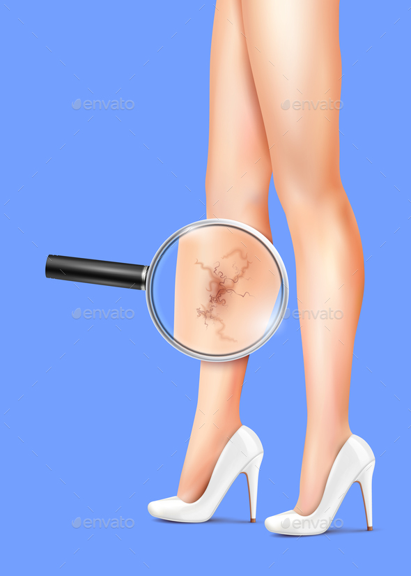 GraphicRiver Female Legs And Varicose Realistic Illustration 21203488