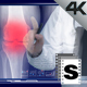Doctor Examine Legs - VideoHive Item for Sale