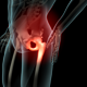 Lateral Hip Pain - VideoHive Item for Sale