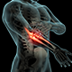 Elbow Pain - VideoHive Item for Sale