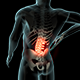 Back Pain - VideoHive Item for Sale