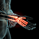 Wrist Pain - VideoHive Item for Sale
