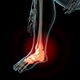 Ankle Pain - VideoHive Item for Sale