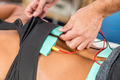 Electrical stimulation in physical therapy. Therapist positionin - PhotoDune Item for Sale