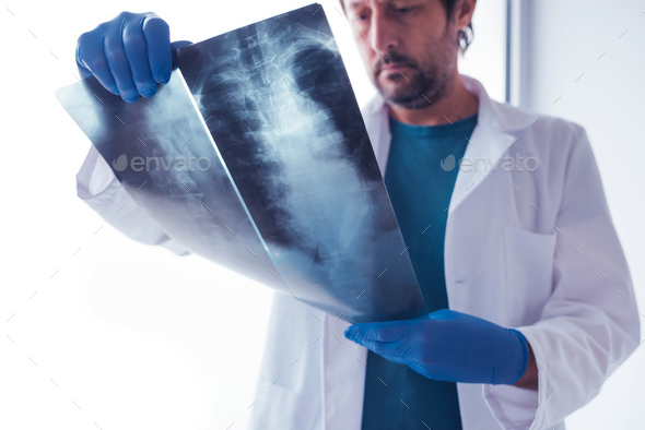 Doctor examining x-ray of the human spine - Stock Photo - Images