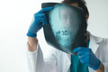 Doctor examining x-ray of the skull - PhotoDune Item for Sale