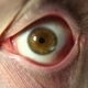 Eye Rotation Of The Eyeball.  of Man Eye That Blink, Crazy Looks Around - VideoHive Item for Sale