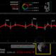Stock Market Animated 4K (6in1) - VideoHive Item for Sale