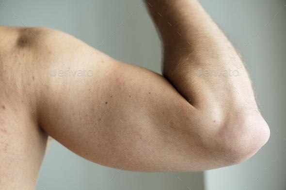 Closeup of an arm of a man - Stock Photo - Images