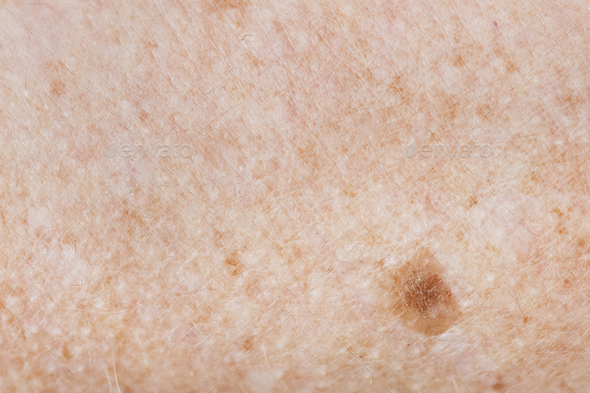Closeup of freckled skin - Stock Photo - Images