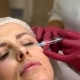 Young Woman Facial Rejuvenation Injections - VideoHive Item for Sale