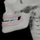 Malocclusion With Underbite - VideoHive Item for Sale