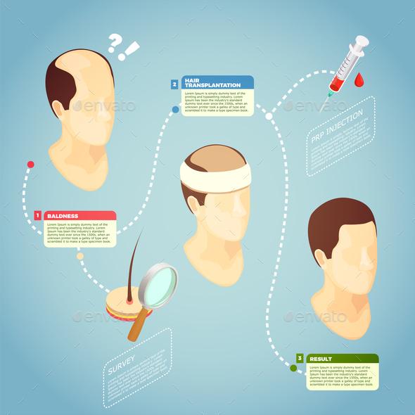 Hair Transplantation Vector Illustration - Health/Medicine Conceptual