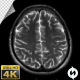 Human Brain MRI Scan - Alpha Channel - VideoHive Item for Sale