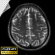 Human Brain MRI Scan - Slow Version - Alpha Channel - VideoHive Item for Sale