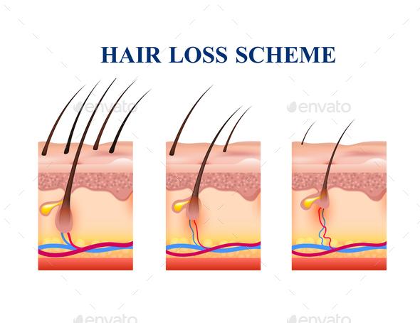 Hair Loss Scheme - Miscellaneous Vectors