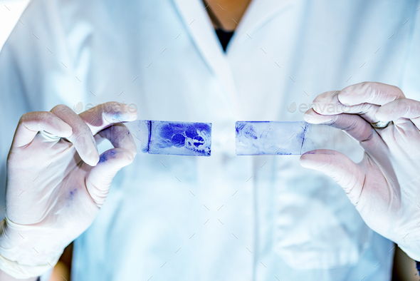 Microbiology laboratory work, comparing results - Stock Photo - Images