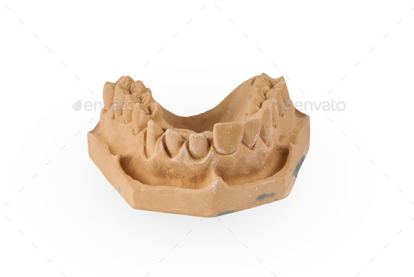 Gypsum model of human jaw - Stock Photo - Images