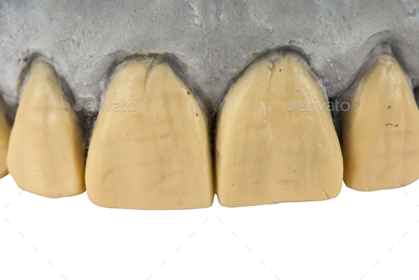 jaw tooth isolated on white background - Stock Photo - Images