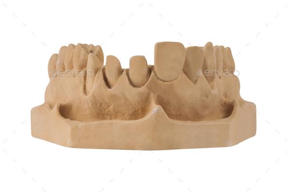Gypsum model of jaw - Stock Photo - Images