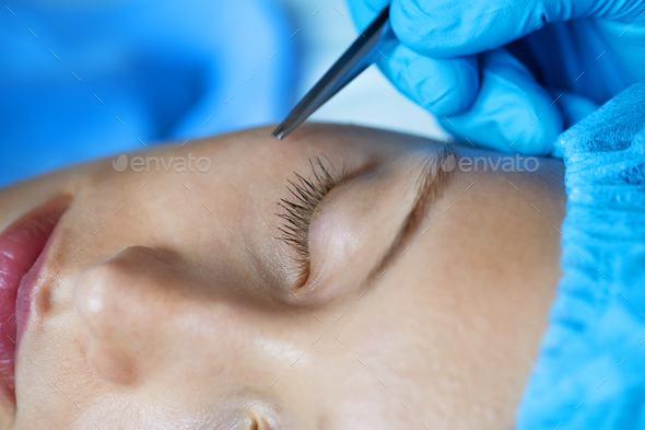 White woman aesthetic and cosmetic surgery concept - Stock Photo - Images