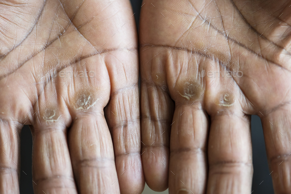 Closeup of calloused black hands - Stock Photo - Images