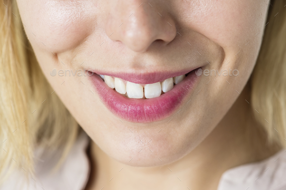 Closeup of smiling woman's teeth - Stock Photo - Images