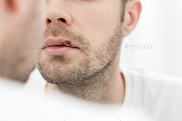 Young man suffering from herpes on his mouth - Stock Photo - Images
