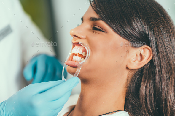 Tooth whitening procedure - Stock Photo - Images