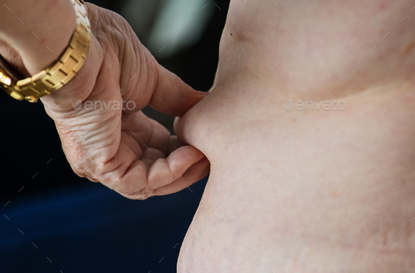 Closeup of obese elderly woman - Stock Photo - Images