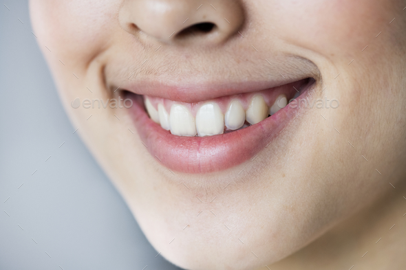 Close up portrait of Young Asian girl teeth smiling - Stock Photo - Images