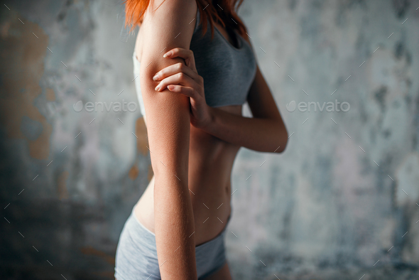 Anorexic sick woman, medical illness - Stock Photo - Images