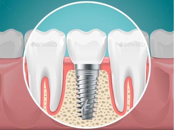 Stomatology Illustrations Dental Implants - Miscellaneous Vectors