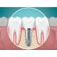 Stomatology Illustrations Dental Implants