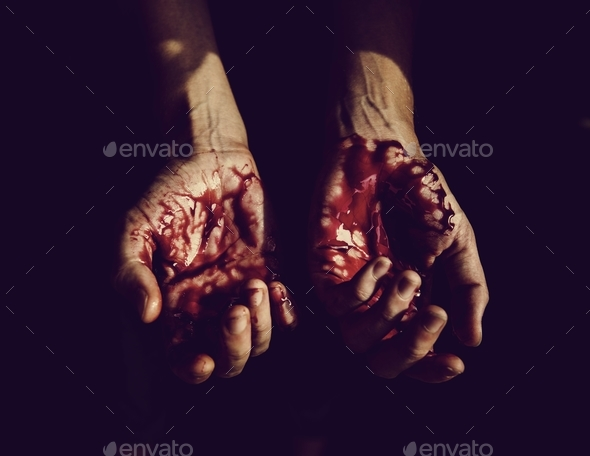 Severely injured bloody hands - Stock Photo - Images