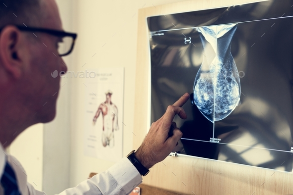 Doctor is checking patient x-ray film - Stock Photo - Images