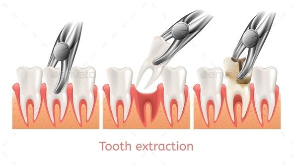 Decay Tooth Extraction Procedure - Health/Medicine Conceptual