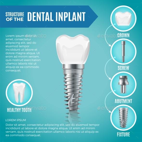 Teeth Maquette - Health/Medicine Conceptual