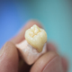 Dental Prosthesis - PhotoDune Item for Sale