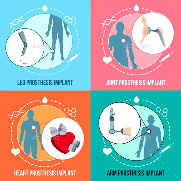Prothesis Implants Flat Concept - Health/Medicine Conceptual