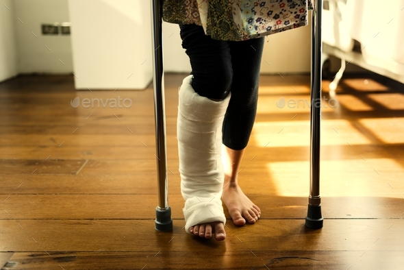 Young Caucasian girl with broken leg in plaster cast - Stock Photo - Images