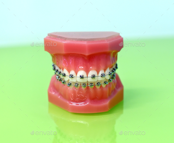 Model of dental appliance showing braces - Stock Photo - Images