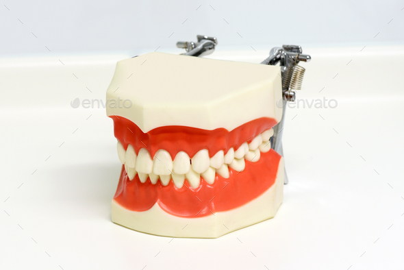 Dental model of upper and lower teeth - Stock Photo - Images