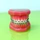 Model of dental appliance showing braces - PhotoDune Item for Sale