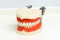 Dental model of upper and lower teeth
