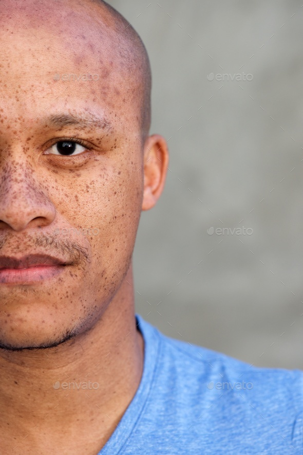 half face african american man with freckles - Stock Photo - Images